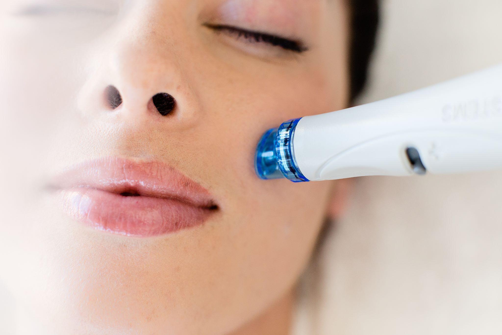 Hydrafacial Stuttgart Hydra Facial Behandlungen Studio immerschön in Stuttgart Vaihingen