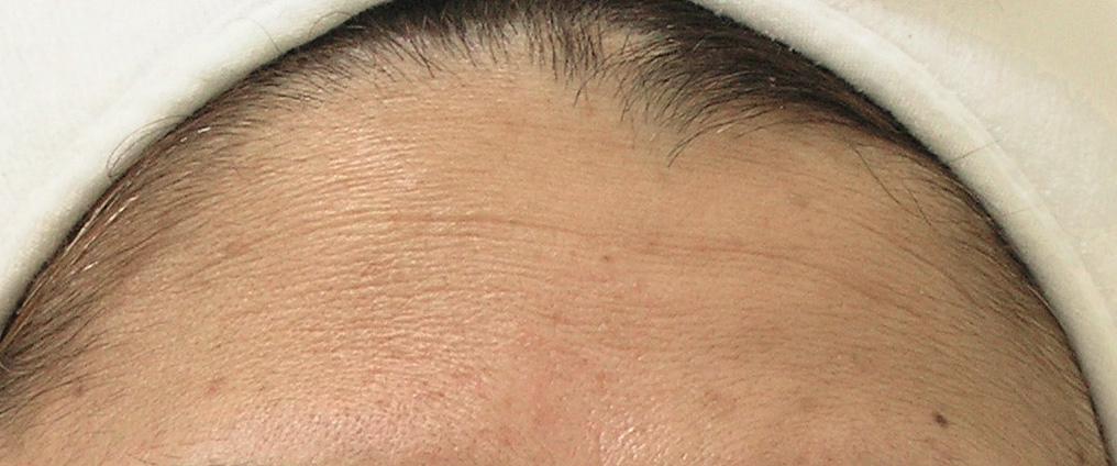 Hydrafacial Ergebnis – Hydrafacial Stuttgart Studio immerschön Vaihingen Anti-Aging Stirnfalten